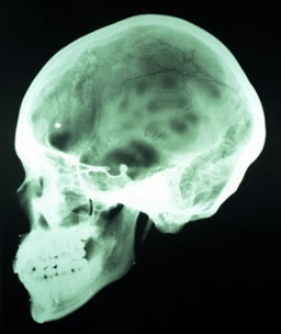 Черепно-мозкова травма