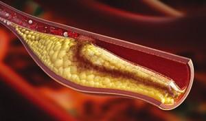 что такое холестерин в крови