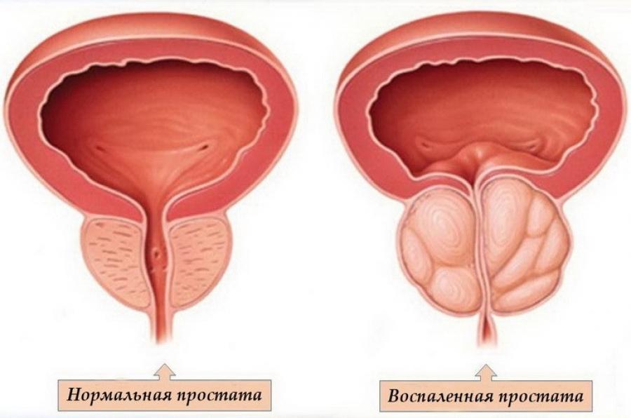 Які симптоми простатиту у чоловіків