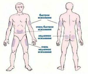 места введения инсулина