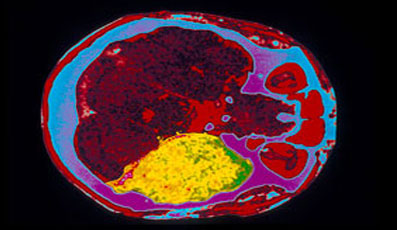 энцефалопатии головного мозга
