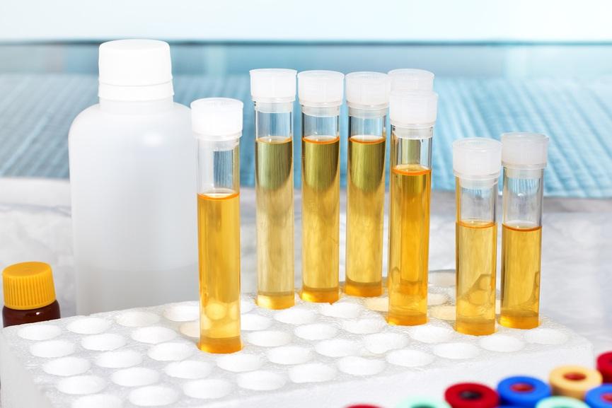Як визначити і вилікувати хронічний бактеріальний простатит