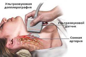 Допплер артерий шеи и мозга