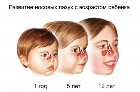развитие гайморовых пазух у детей