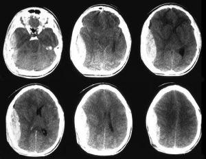 Гематома на МРТ