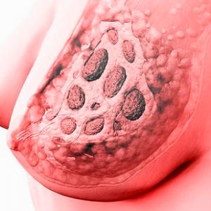 фибриозно мастопатия