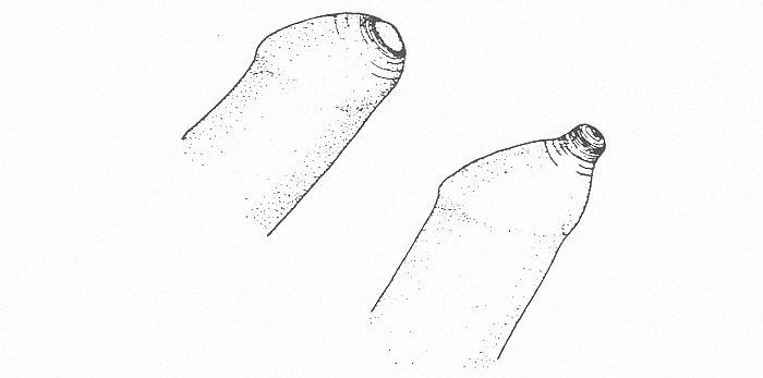 Чи можливо лікування фімозу без обрізання?