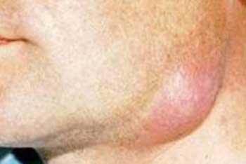 Проявления флегмоны лица и шеи, фото 3