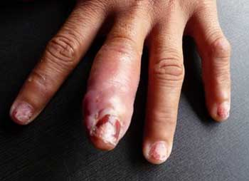 Флегмона пальца, фото 5