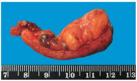 Флегмонозный аппендицит