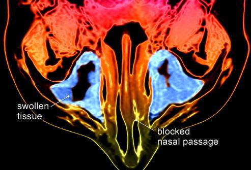 МРТ: синим показана гипертрофированная слизистая гайморовых пазух