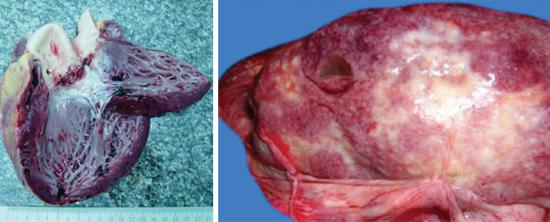 гнойный эндокардит (слева) и гнойный нефрит (справа).