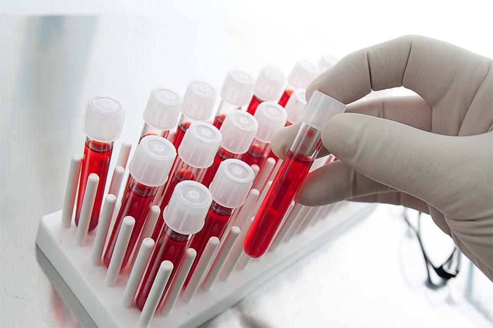 Підвищений гемоглобін: методики лікування