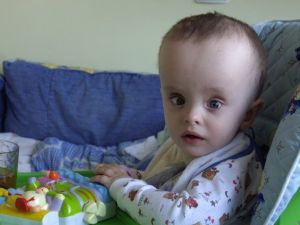 гидроцефалия мозга у ребенка