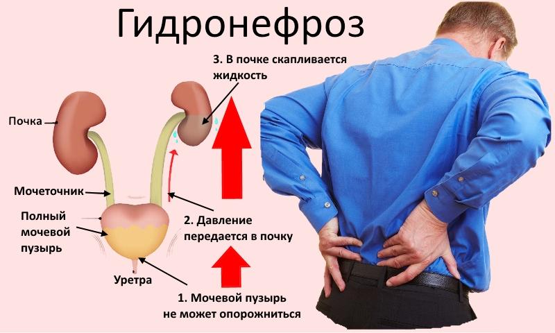 Як потрібно лікувати гідронефроз нирок все про проблему