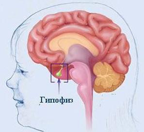 Гипопитуитаризм — это заболевание главной эндокринной железы — гипофиза