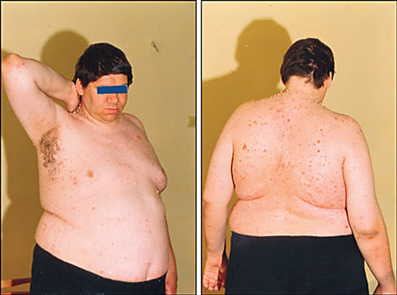 Гіпогонадизм у чоловіків: особливості, симптоми, лікування