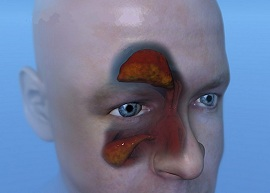 Симптомы и лечение гнойного фронтита