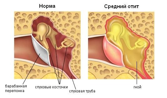 Сравнение здорового уха и с отитом