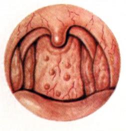Фарингоскопическая картинка гранулезного фарингита