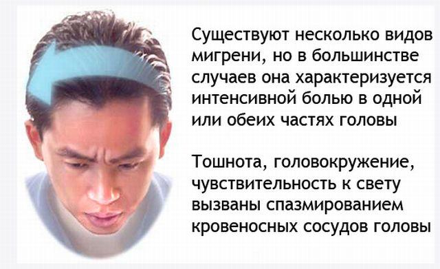 Виды мигрени