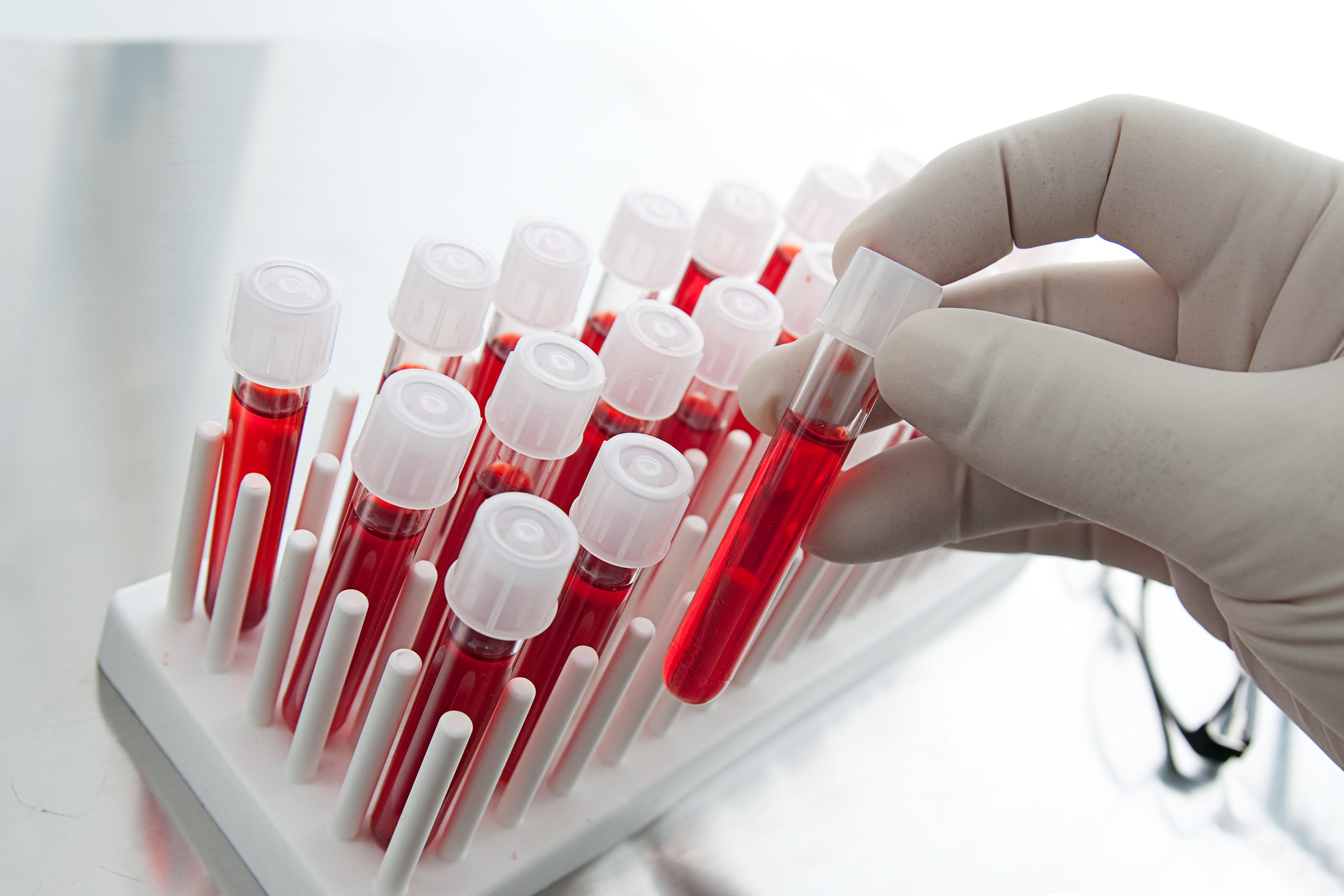Як визначити рак простати за аналізом крові