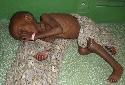 эпидемия холеры в Эфиопии