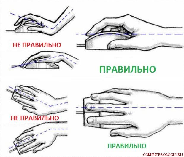 Тунельний синдром зап'ястя (карпальний синдром)