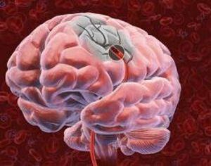 нарушение кровообращения мозга