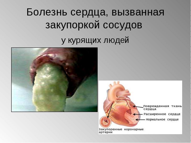 Як куріння впливає на судини організму
