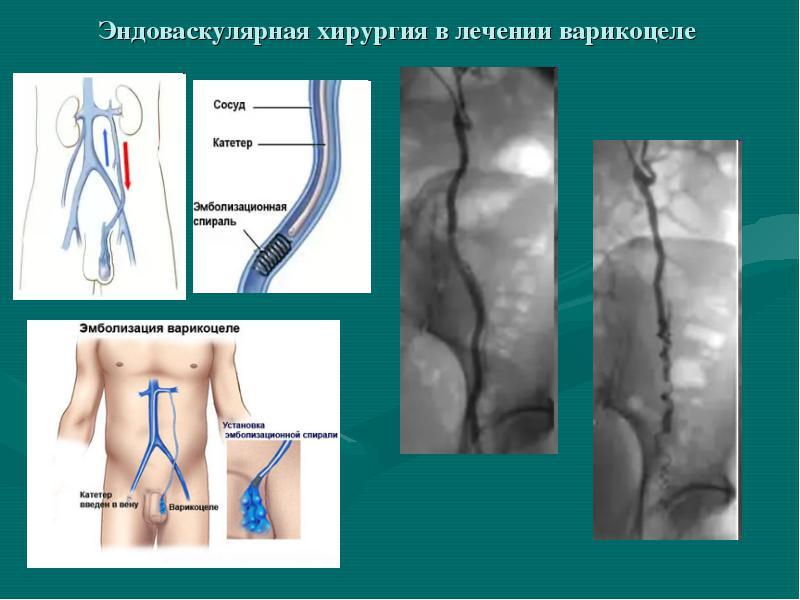 Відновлення після операції варикоцеле