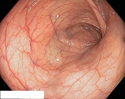 нормальная слизистая толстого кишечника