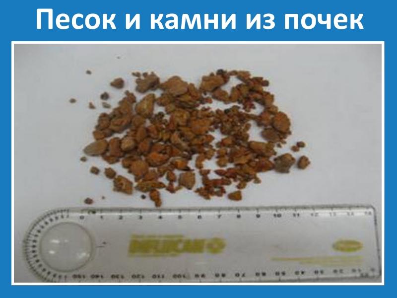 Йде пісок з нирок: можливі причини і принципи лікування