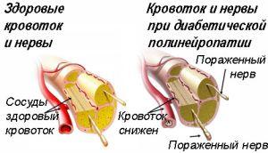 разрушение нерва при диабете