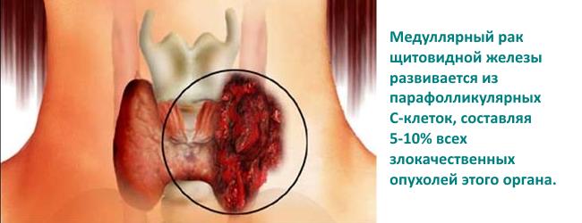 kalcitonin-onkomarker-shhitovidnoj-zhelezy