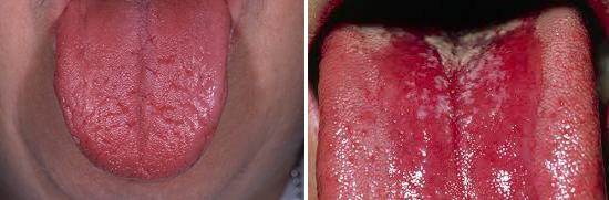 молочница языка