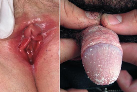 молочница половых органов
