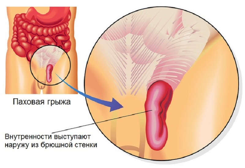 Пахово-мошоночная грижа у чоловіків, особливості діагностики та терапії