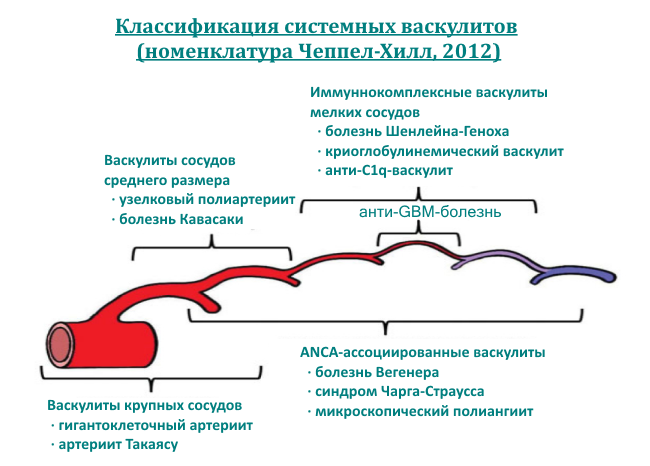 klassifikaciya-vaskulitov