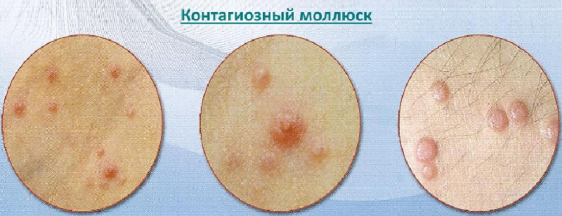 Контагіозний молюск: особливості сучасного лікування і профілактики у чоловіків