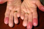 Хронический контактный дерматит на руках