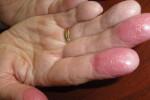 Хронический контактный дерматит
