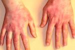 Аллергический контактный дерматит на руках