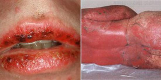 сыпь при синдроме Стивенса-Джонсона