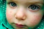 Крапивница на лице у ребенка
