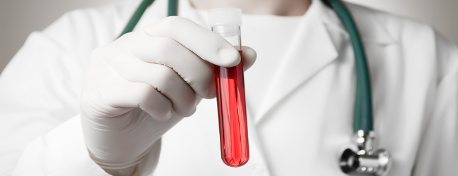 laboratornaya-diagnostika-allergii 4