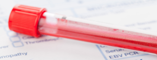 laboratornaya-diagnostika-allergii laboratornaya-diagnostika-allergii