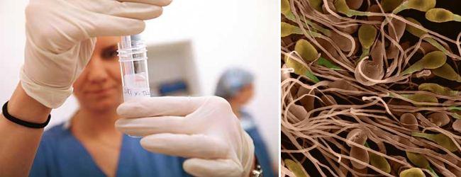 laboratornyj-analiz-spermy