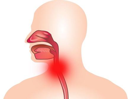 Болезнь характеризуется воспалением гортани и трахеи