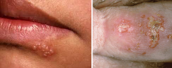 герпес на губах и половых органах